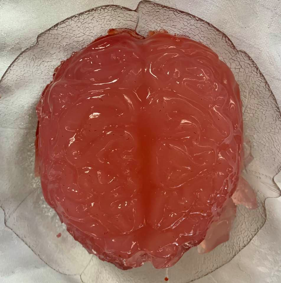 Brain-shaped jello, made by my daughter, our family's very own neuroscientist!